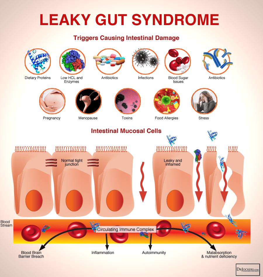 guthealth_leakygutsyndrome-2972266